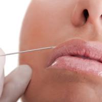 odontoiatria_estetica3